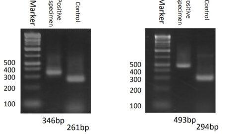 【PCR検査】試薬の感度と特異度|自分でできる検査キットは使えるのか